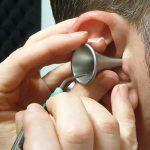 Microsuction of ear wax
